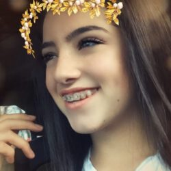 Charli when she had braces